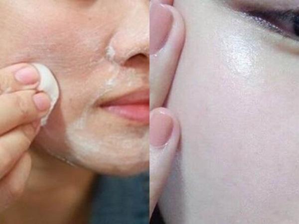 Mẹ nào mặt có lỗ chân lông to như sẹo rỗ hãy thoa kem đánh răng trong 10 phút là se khít lại láng mịn như da em bé