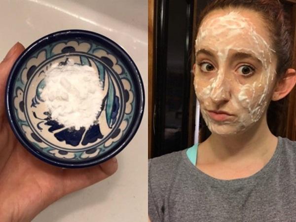 Nghe nói baking soda giúp trị mụn đầu đen, cô nàng này đã thử trong 1 tuần và nhận kết quả đáng thất vọng