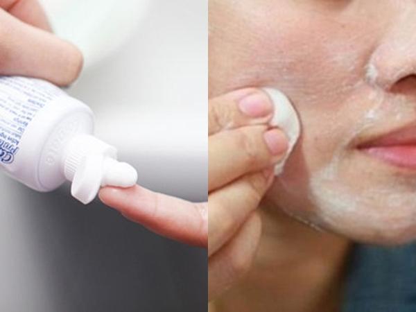 Nhà có kem đánh răng hãy chà lên mặt trước khi ngủ, mụn nhọt, sẹo thâm, lỗ chân lông to cũng trị dứt điểm mà chẳng cần đi spa cho tốn kém