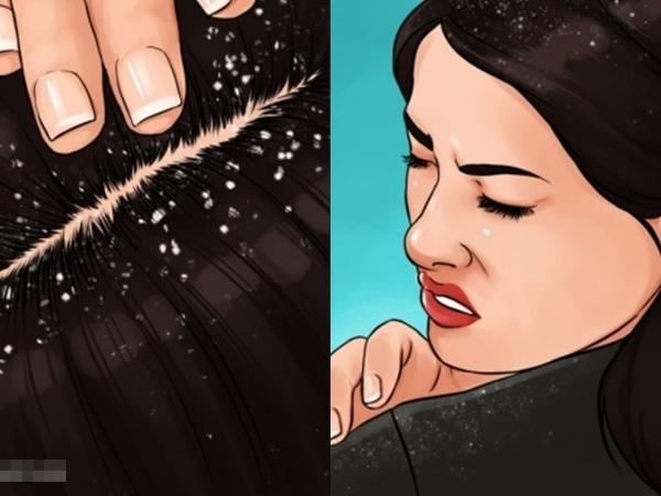 Dùng 4 thứ này để gội đầu, không chỉ trị tận gốc gàu mà còn giúp tóc mọc dài cực nhanh