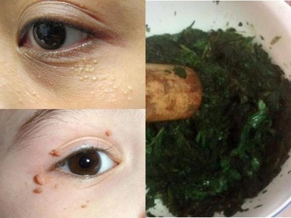 Mặt nạ lá tía tô - 'Thần dược' điều trị mụn thịt, quầng thâm, nếp nhăn quanh mắt
