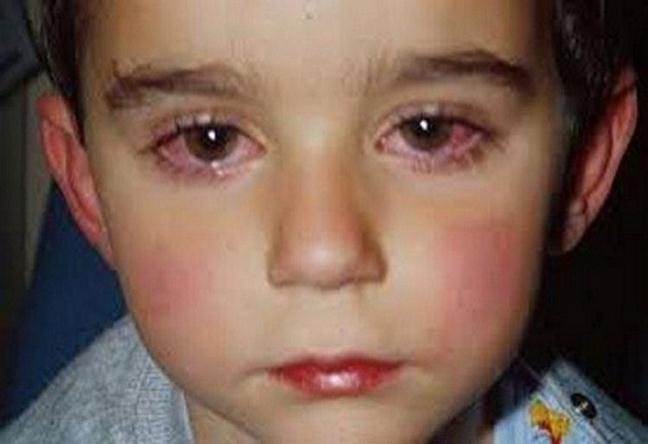 Cậu bé 14 tuổi mất 75% thị lực bởi món đồ chơi nhiều mẹ Việt thường mua cho con - Ảnh 1