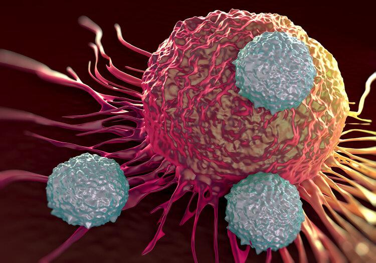 1/6 bệnh nhân mắc ung thư là do viêm: Nếu thấy cơ thể có 3 bộ phận này bị viêm, bạn nên đến viện khám ung thư khẩn cấp - Ảnh 2