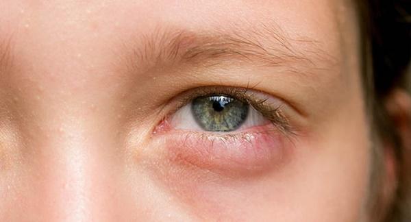 6 dấu hiệu bất thường khi ngủ dậy cảnh báo bệnh nguy hiểm - Ảnh 2