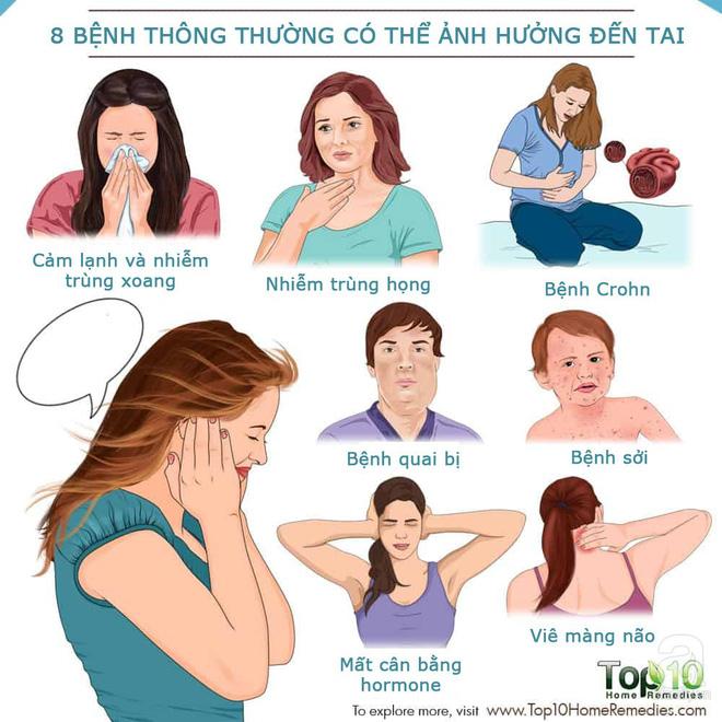 8 bệnh tưởng chừng không liên quan đến tai nhưng lại có thể gây kích thích tai, thậm chí khiến bạn bị điếc vĩnh viễn - Ảnh 1