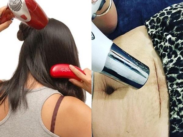 Không thể ngờ máy sấy tóc lại có 7 công dụng chăm sóc sức khỏe 'thần thánh' thế này