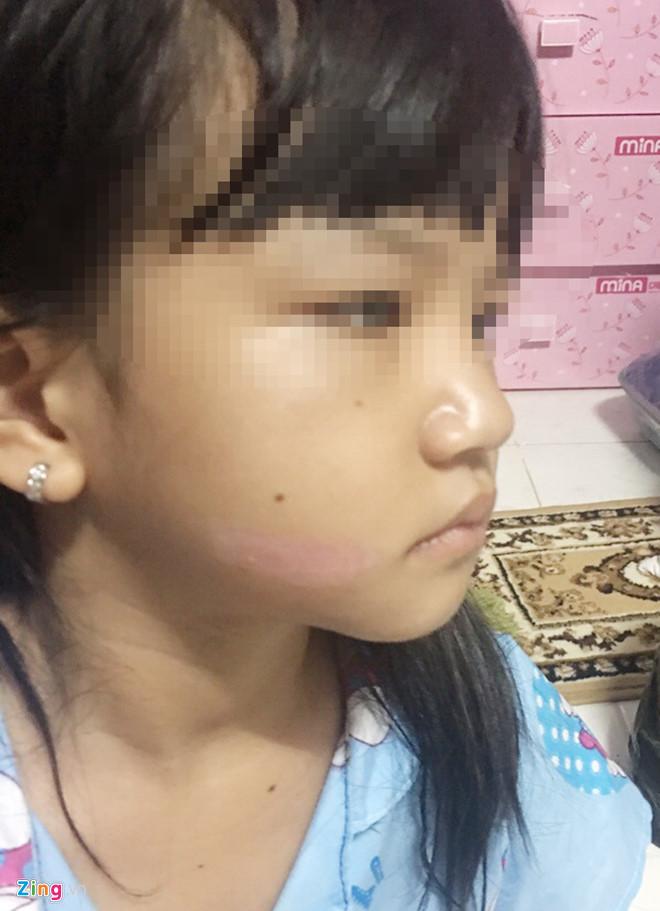 Cha bé gái nghi bị dí sắt nóng vào mặt: 'Chó còn thương con' - Ảnh 2