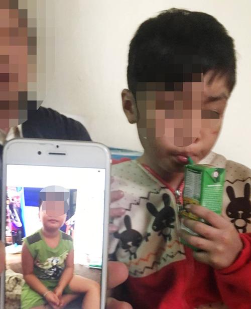Vụ bé trai 10 tuổi bị bạo hành ở HN: Đừng hỏi về việc cháu bị bố đánh nữa - Ảnh 1