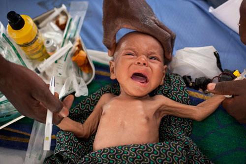 3 giai đoạn biểu hiện chứng tỏ bé đang bị suy dinh dưỡng - Ảnh 1
