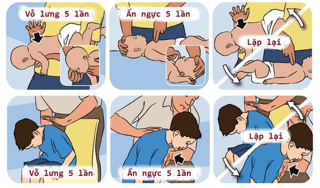 4 cách sơ cứu quan trọng giúp cứu mạng trẻ trong những trường hợp khẩn cấp - Ảnh 1