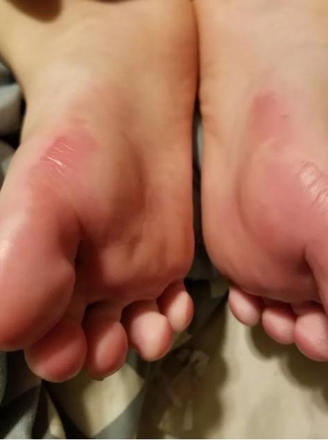 Bàn chân bé trai bỏng độ 2, đau đớn chẳng thể đi lại, bác sĩ kết luận đôi giày chính là thủ phạm - Ảnh 3