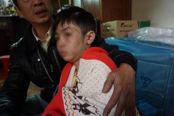 Vụ bé trai 10 tuổi bị bạo hành rạn xương sườn: Mẹ kế đã tới công an trình diện - Ảnh 1