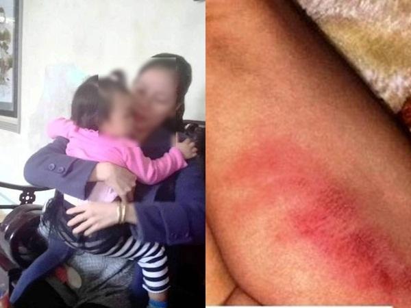 Thừa Thiên-Huế: Nghi án bé gái 16 tháng tuổi bị bảo mẫu nhà trẻ đánh tím bẹn, tâm lý hoảng loạn bất thường