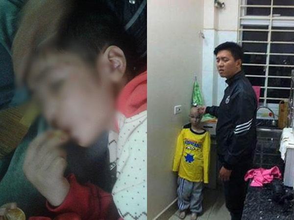 Bé trai 10 tuổi bị bạo hành gãy xương sườn, rạn sọ não chưa từng nhận một lời xin lỗi từ cha, mẹ kế