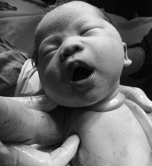 Bé Sài Gòn chào đời với dây rốn quấn chặt cổ: Các mẹ hốt hoảng, bác sĩ bảo chuyện thường - Ảnh 2