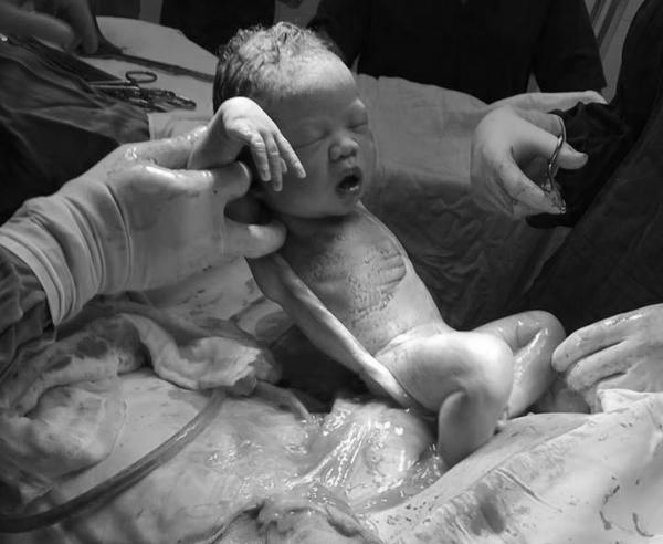 Bé Sài Gòn chào đời với dây rốn quấn chặt cổ: Các mẹ hốt hoảng, bác sĩ bảo chuyện thường - Ảnh 3