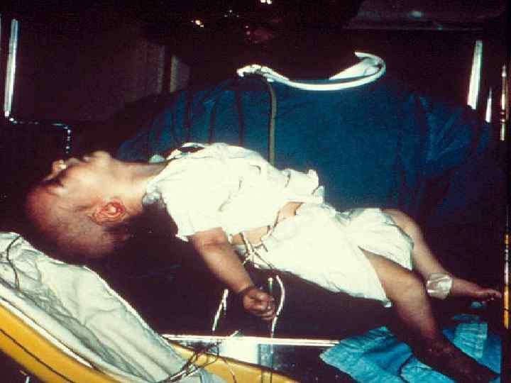 Bé trai tử vong vì món đồ uống rất tốt cho trẻ nhỏ nhưng lại cực độc với trẻ dưới 1 tuổi - Ảnh 3