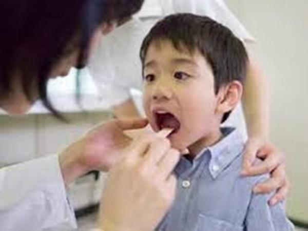 Cắt amidan: Tăng gấp 3 lần nguy cơ mắc cúm, suyễn, viêm phổi