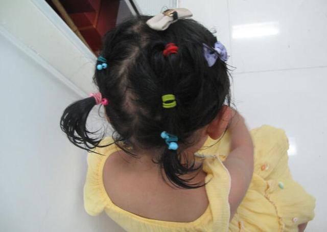 Ham buộc tóc làm đẹp cho con gái, mẹ nào ngờ khiến bé rụng tóc, tổn thương da đầu - Ảnh 1