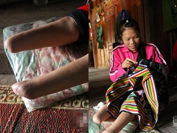 Hành trình 6 năm trốn thoát động quỷ buôn người của cô gái trẻ, bị cưa mất đôi chân trên đường trở lại quê nhà