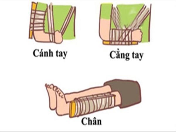 Hướng dẫn sơ cứu đúng cách cho trẻ bị gãy xương