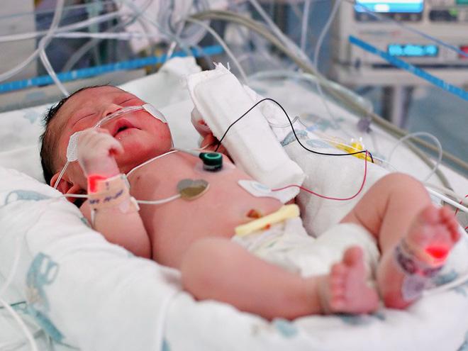 Nhiễm trùng máu - 'kẻ giết người thầm lặng' mọi bà mẹ nên nắm được triệu chứng sớm vì rất dễ bị chẩn đoán nhầm - Ảnh 3