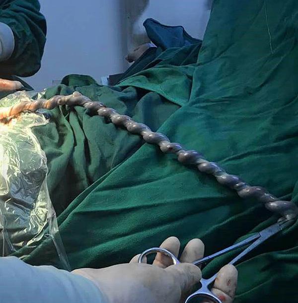 """Nhìn dây rốn thai nhi khi mổ đẻ, bác sĩ lắc đầu: """"Sao bé có thể nghịch tới mức này?"""" - Ảnh 1"""