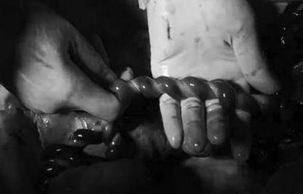 """Nhìn dây rốn thai nhi khi mổ đẻ, bác sĩ lắc đầu: """"Sao bé có thể nghịch tới mức này?"""" - Ảnh 2"""