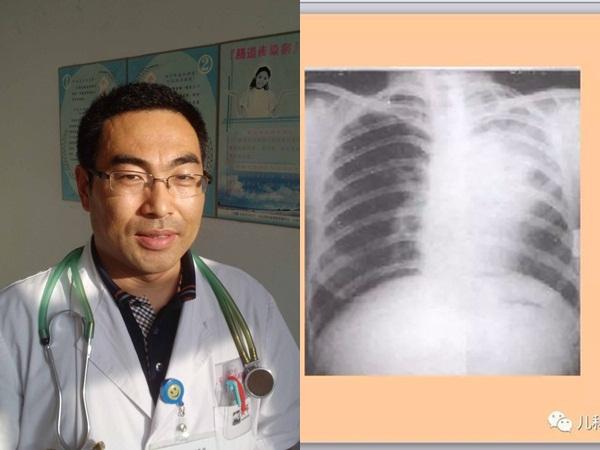Những dấu hiệu nhận biết khi trẻ bị viêm phổi, phụ huynh nên nắm rõ để xử lý đúng cách
