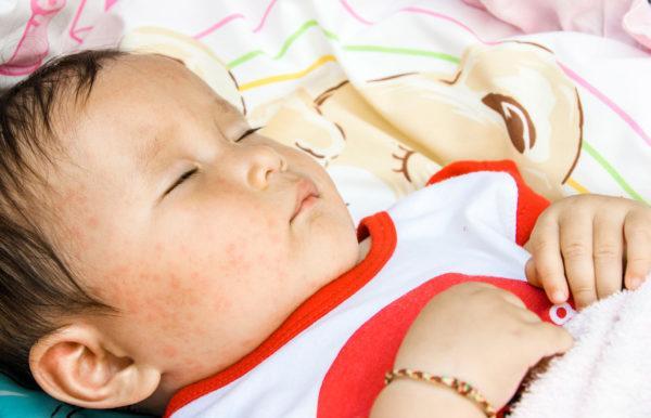 Sốt phát ban ở trẻ: Dấu hiệu chính xác để phát hiện bệnh - Ảnh 1