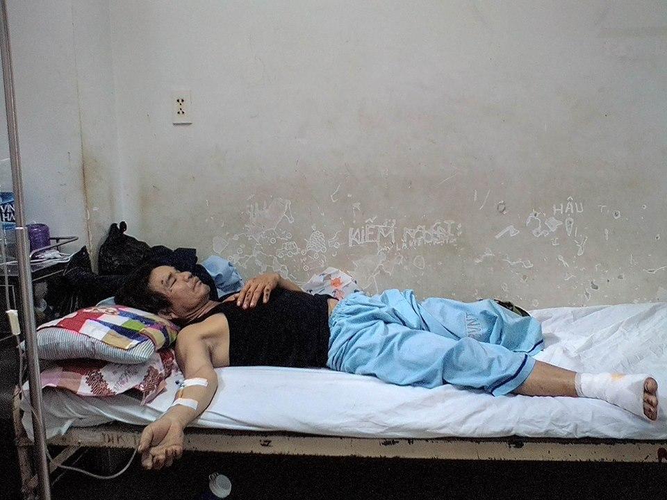 Thảm cảnh đôi vợ chồng nghèo 5 con bị xe tải đâm trên đường về nhà: 'Chân tôi đứt rồi! Ai nuôi con tôi đây!' - Ảnh 2