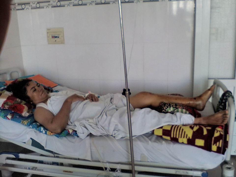 Thảm cảnh đôi vợ chồng nghèo 5 con bị xe tải đâm trên đường về nhà: 'Chân tôi đứt rồi! Ai nuôi con tôi đây!' - Ảnh 1