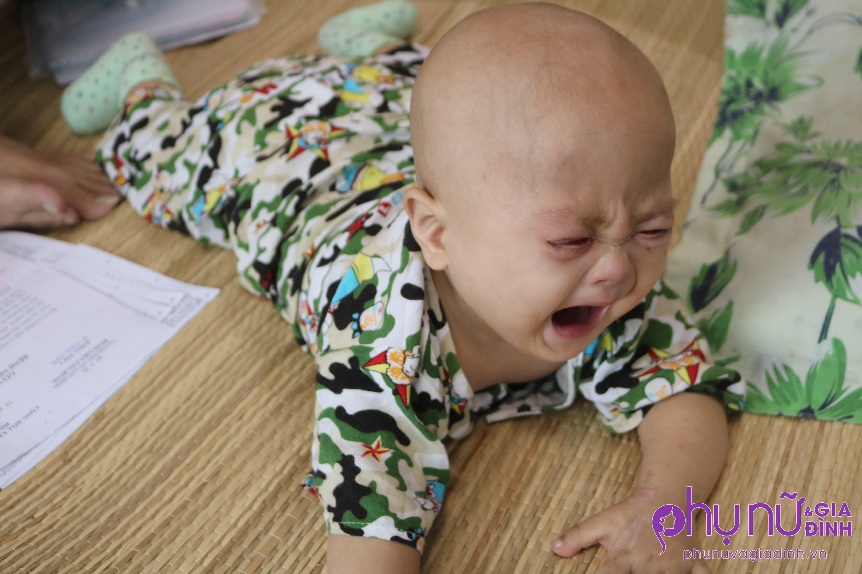 Xót lòng bé trai 11 tháng tuổi bị Down mắc ung thư máu: 'Trời cho con mạng sống sao nỡ cướp đi sức khỏe của con?' - Ảnh 4