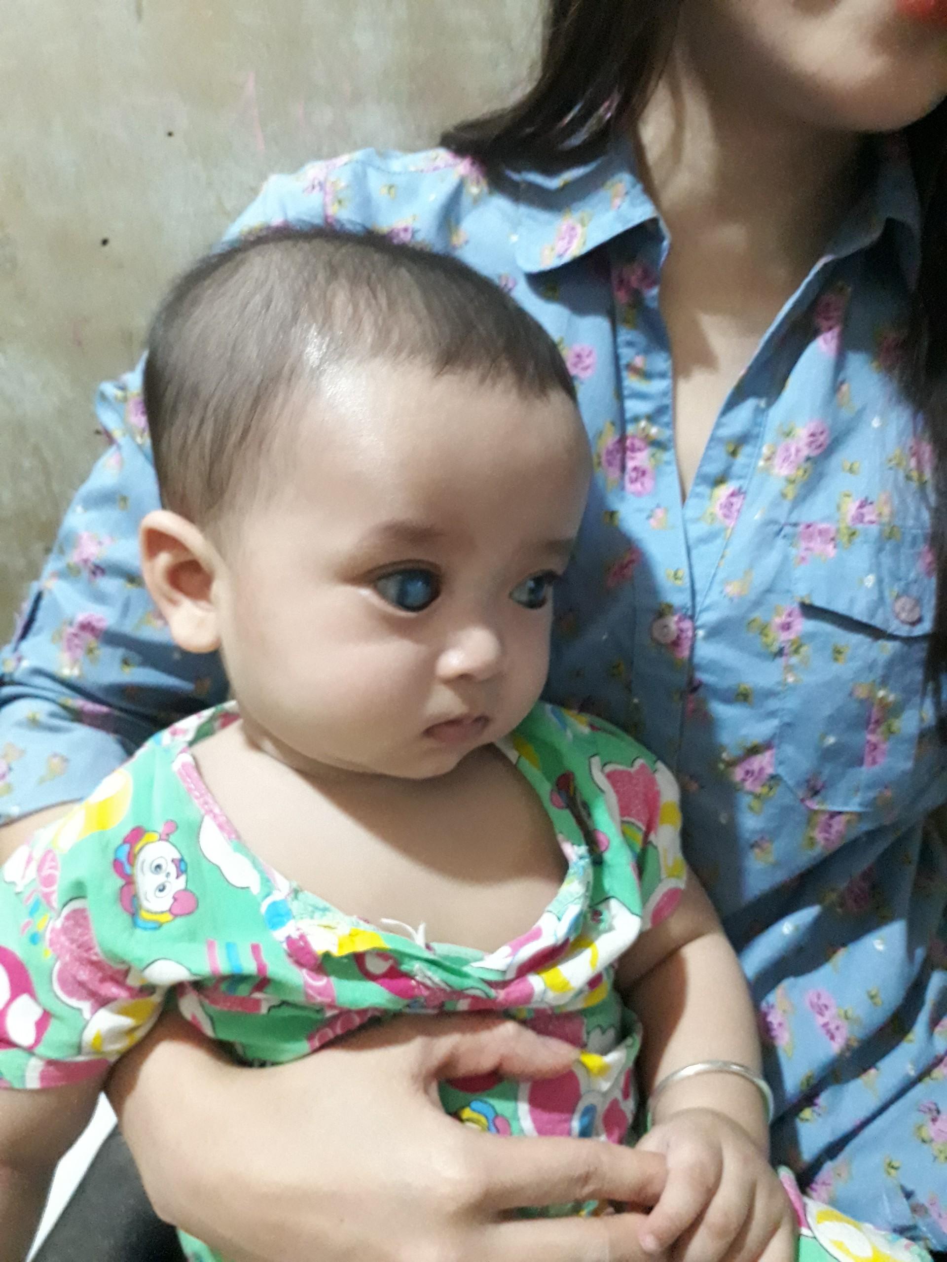 Xót xa bé trai 6 tháng tuổi xinh như thiên thần với đôi mắt màu xanh dương có nguy cơ mù lòa - Ảnh 3