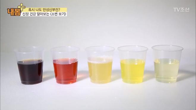 Bác sĩ Hàn Quốc hướng dẫn cách nhìn tình trạng nước tiểu xác định xem cơ thể đang mắc bệnh gì - Ảnh 1