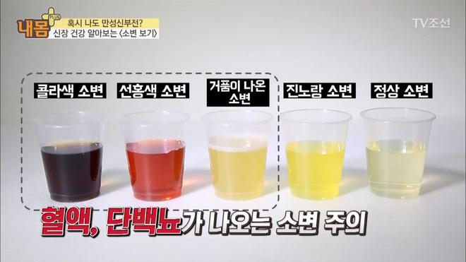 Bác sĩ Hàn Quốc hướng dẫn cách nhìn tình trạng nước tiểu xác định xem cơ thể đang mắc bệnh gì - Ảnh 8