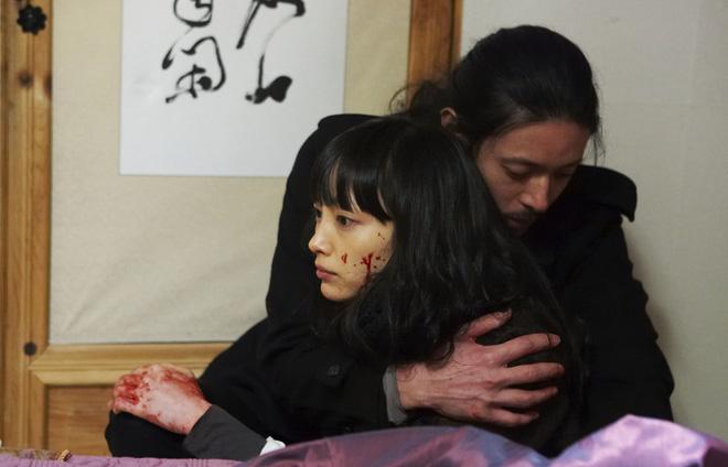 5 diễn viên Hàn bị tai nạn nghiêm trọng trên phim trường: T.O.P suýt mù một mắt, Lee Na Young xém mất mạng - Ảnh 3