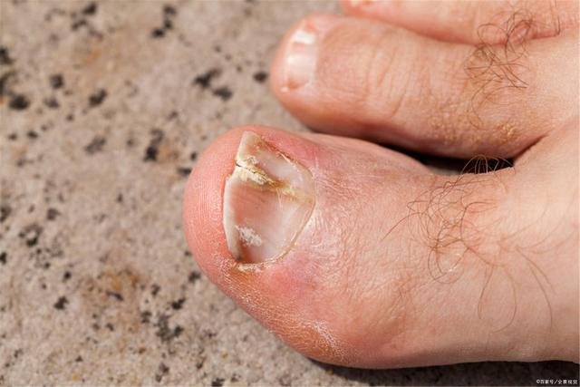 Người tuổi thọ ngắn thường có 4 dấu hiệu nhận biết trên bàn chân, dù chỉ sở hữu 1 điểm bạn cũng không được coi thường - Ảnh 2