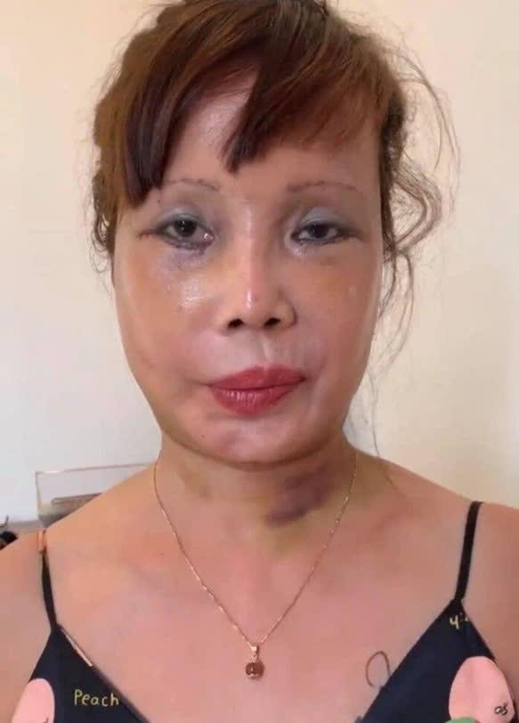 Vừa khoe gương mặt đã khỏi bị lệch, cô dâu Cao Bằng 64 tuổi lại hé lộ hình ảnh cho thấy mối quan hệ của chồng 'phi công' với con gái riêng của vợ - Ảnh 3