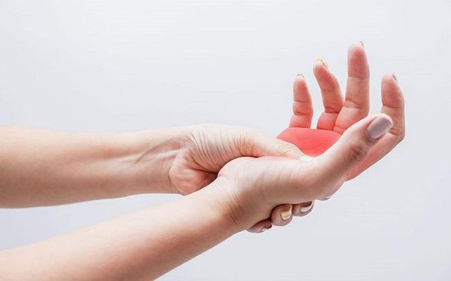 Có 4 dấu hiệu này xuất hiện trên bàn tay, cảnh báo mạch máu bị tắc nghẽn - Ảnh 2
