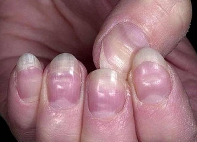 Có 4 dấu hiệu này xuất hiện trên bàn tay, cảnh báo mạch máu bị tắc nghẽn - Ảnh 4