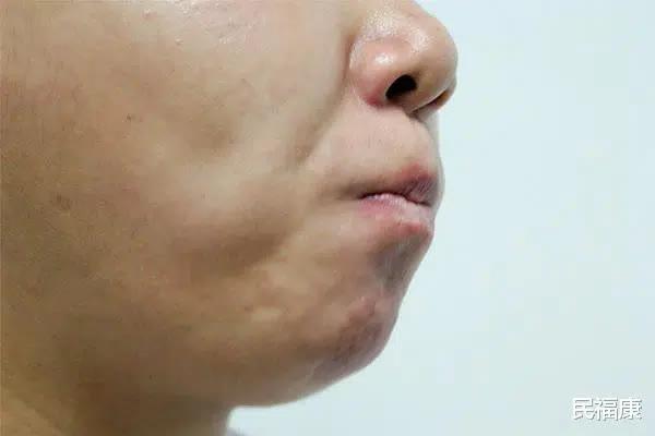 Bỗng thấy miệng xuất hiện 3 điều 'lạ' nghĩa là ung thư đã hình thành, bạn nên đi khám khẩn cấp - Ảnh 2