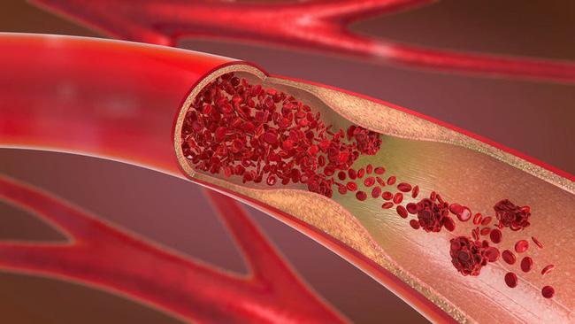 Cục máu đông là 'sát thủ' gây đột quỵ, tắc nghẽn mạch máu: 5 cách giúp bạn nhận ra loại bệnh này tại nhà - Ảnh 1