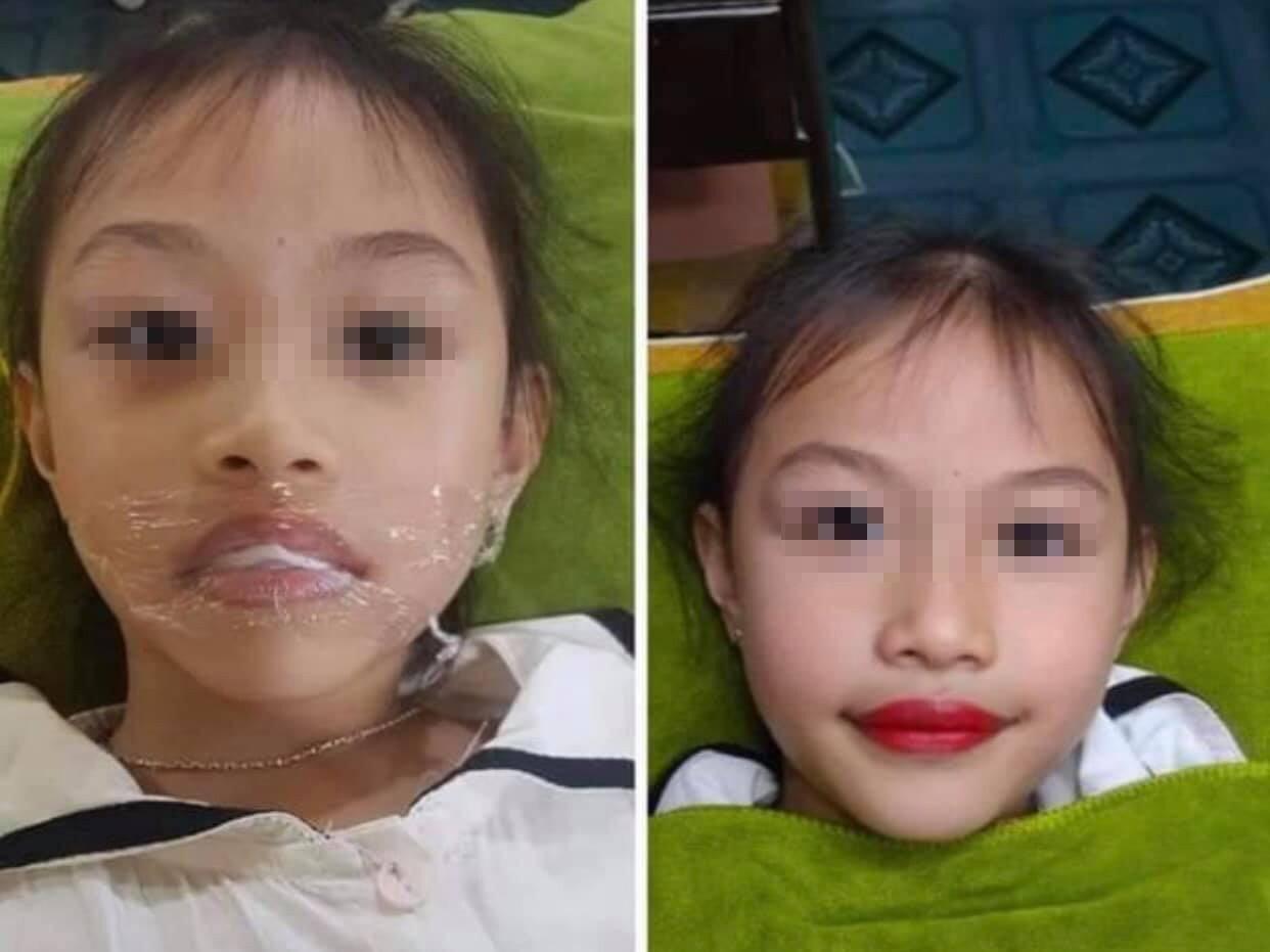 Mới 5 tuổi đã dẫn con gái đi phun môi, cộng đồng mạng bức xúc lên án người mẹ