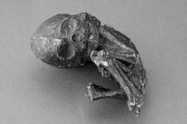 Kỳ bí những thai nhi nằm hàng vài chục năm trong bụng mẹ - Ảnh 1