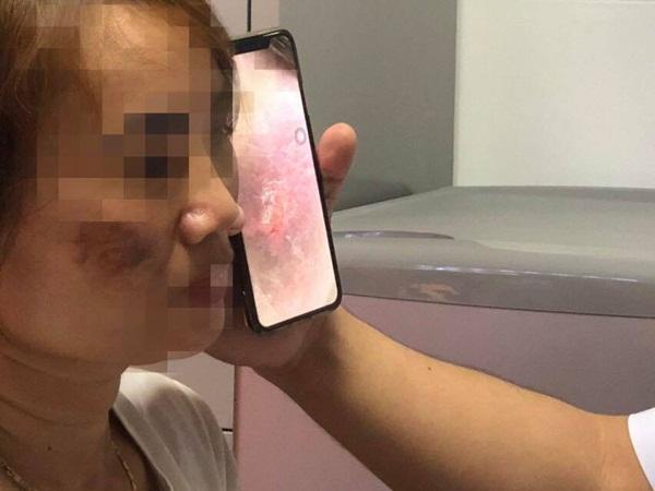 Mặt người phụ nữ loang lổ, đen sạm sau khi lăn kim trị nám da ở spa
