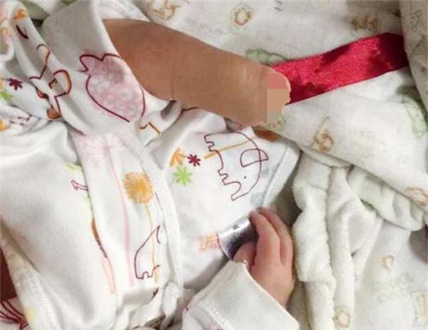 Mang bầu hơn 4 tháng mới biết, mẹ trẻ khóc nghẹn nhìn con sinh ra dị tật vì lỡ làm 'chuyện cấm' - Ảnh 2