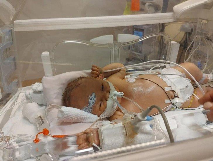 Mẹ bầu 8 tháng bụng to vượt mặt vẫn không biết, khóc cạn nước mắt khi con vừa sinh ra phải đưa ngay đi cấp cứu vì lý do này - Ảnh 2