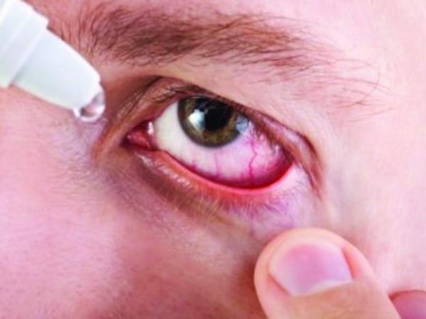 Đau mắt đỏ bệnh thường gặp vô cùng khó chịu trong những ngày hè - Ảnh 1