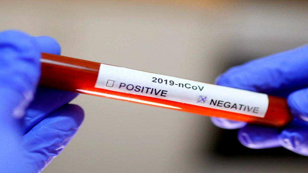 Mắc Covid-19 đã khỏi ở TP.HCM, người ra Hà Nội xét nghiệm vẫn có thể nhận kết quả dương tính